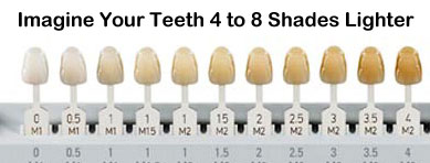 Tooth color chart teeth whitening